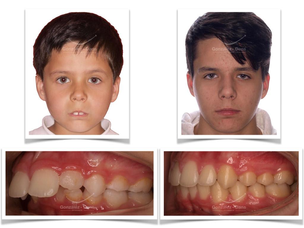Avance Mandibular Frontal