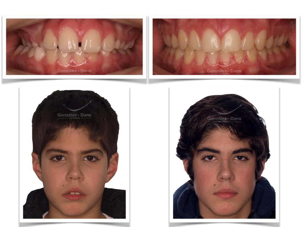 ¿Por qué usar Invisalign? - Ventajas y desventajas de la ortodoncia invisible