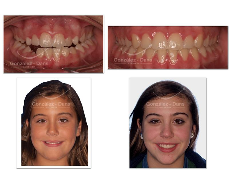 Compresión maxilar Solución sin brackets