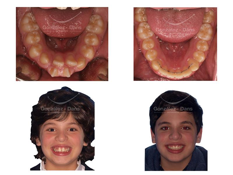 Clínica de ortodoncia en Coruña