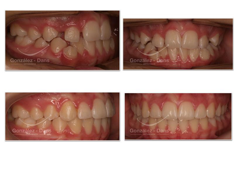 ortodoncia coruña precio opiniones