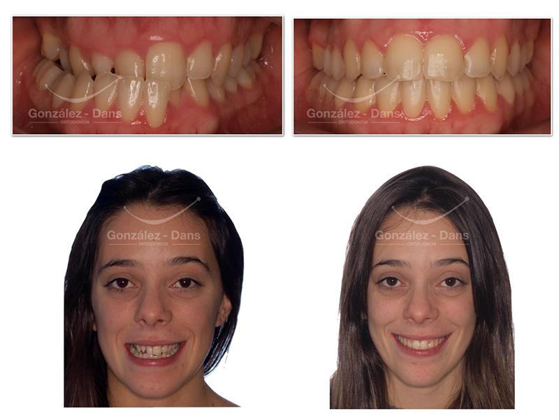 Prognatismo compresión maxilar