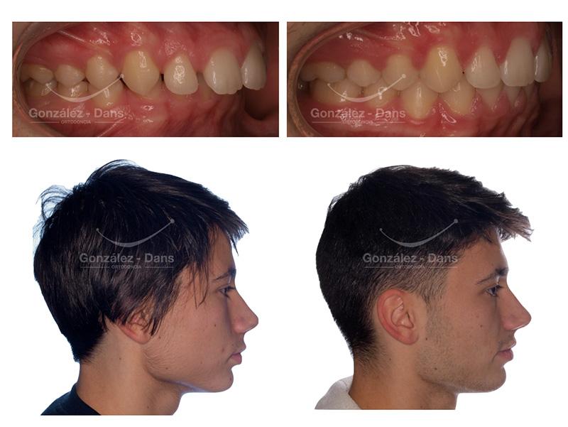 Protusión maxilar