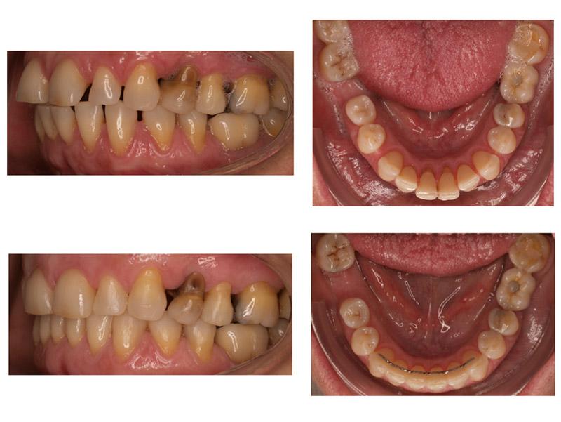 Inclinación dentaria - Invisalign