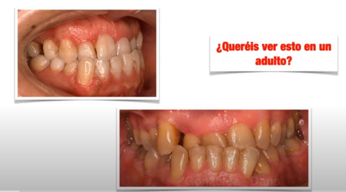 clase III ortodoncia