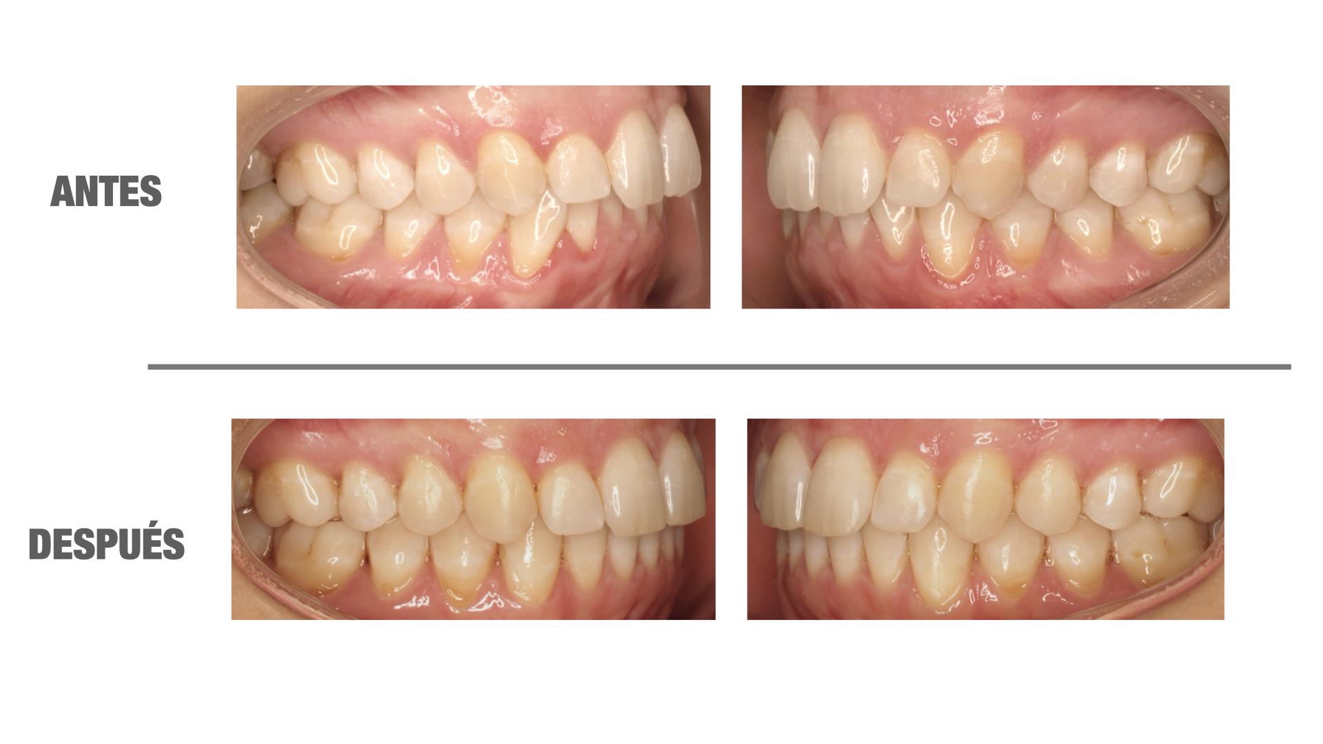 dientes que se mueven