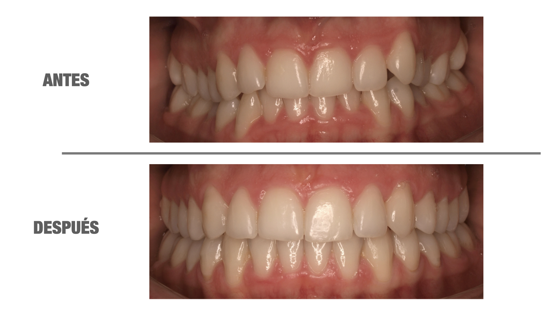 mis dientes se mueven después de la ortodoncia