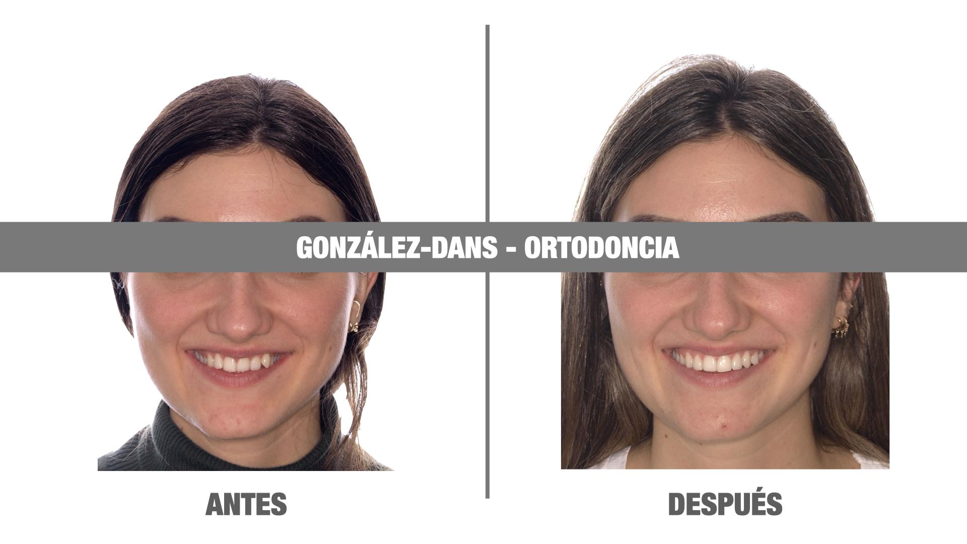 Invisalign Coruña